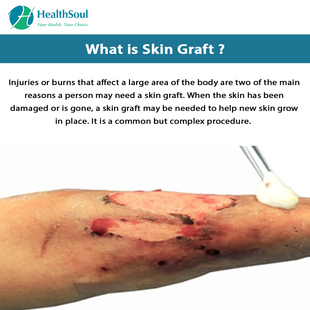 What is Skin Graft?