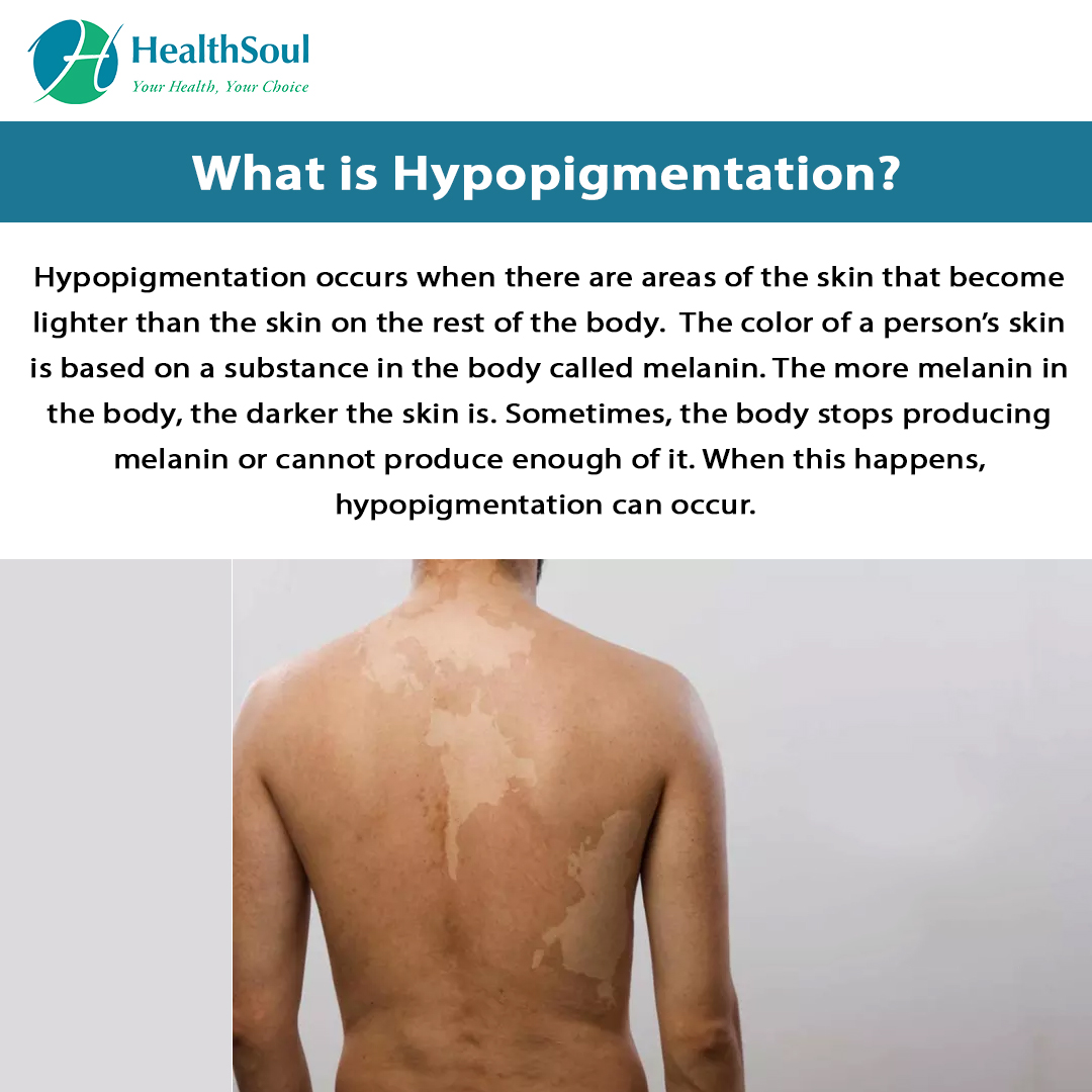 What is Hypopigmentation?