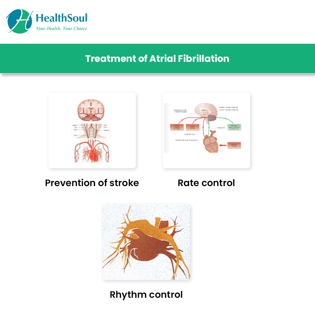 Treatment of Atrial Fibrillation | HealthSoul