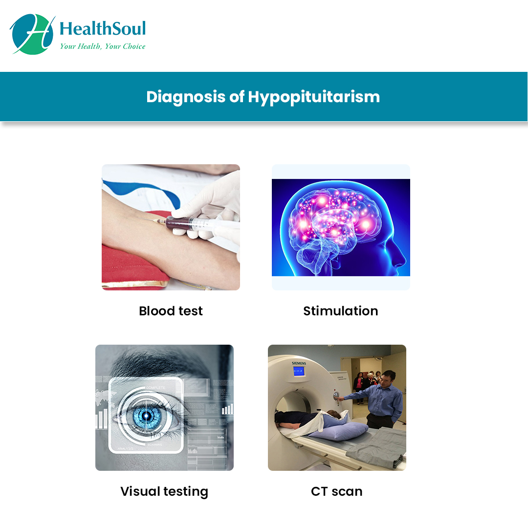 Diagnosis of Hypopituitarism