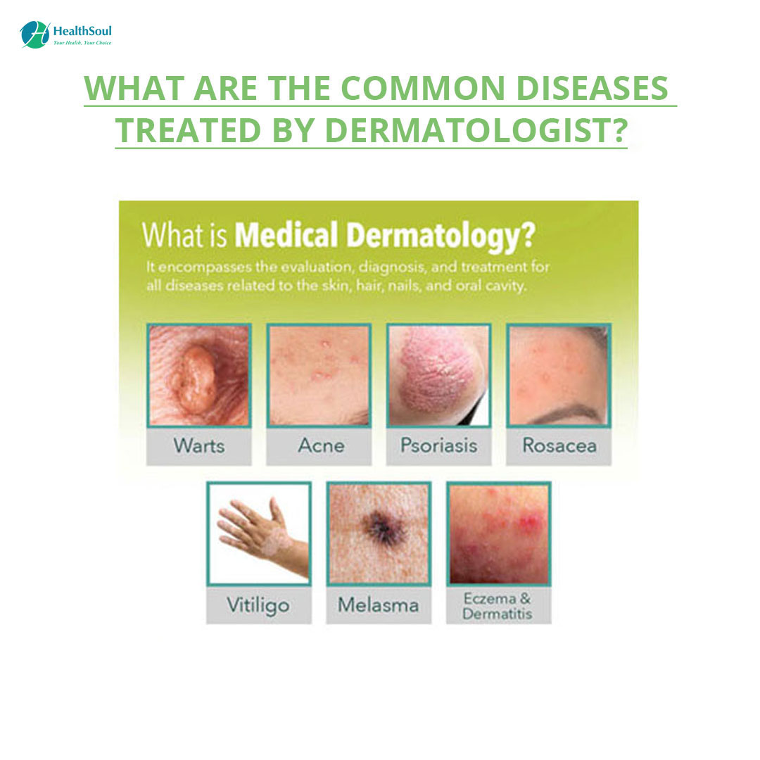 What are the common diseases treated by Dermatologist?