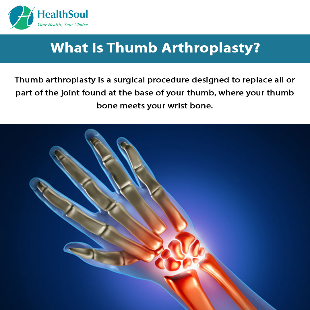 What is Thumb Arthroplasty?