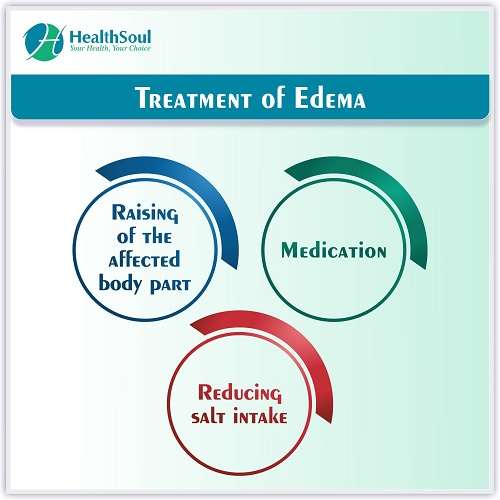 Treatment of Edema | HealthSoul