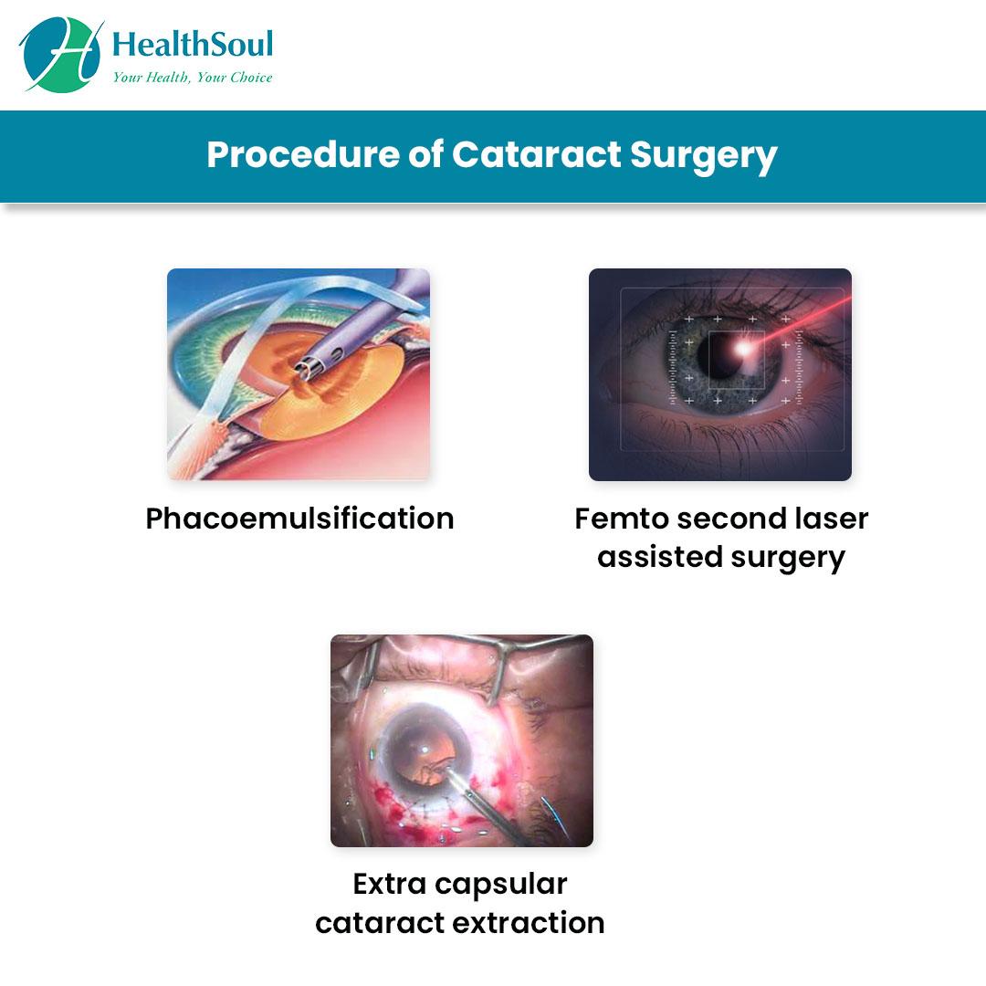 Procedure of Cataract Surgery