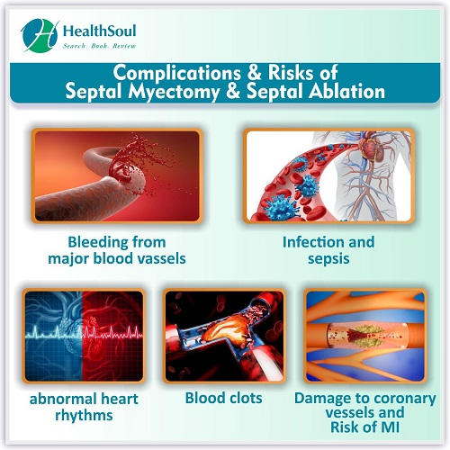 Complications & Risks of Septal Myectomy & Septal Ablation | HealthSoul
