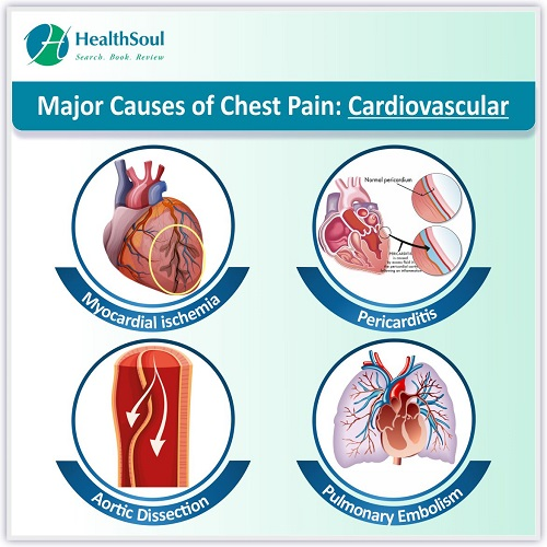 Major Causes of Chest Pain: Cardiovascular | HealthSoul