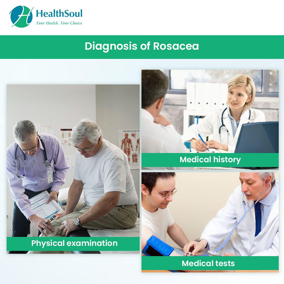 Diagnosis of Rosacea