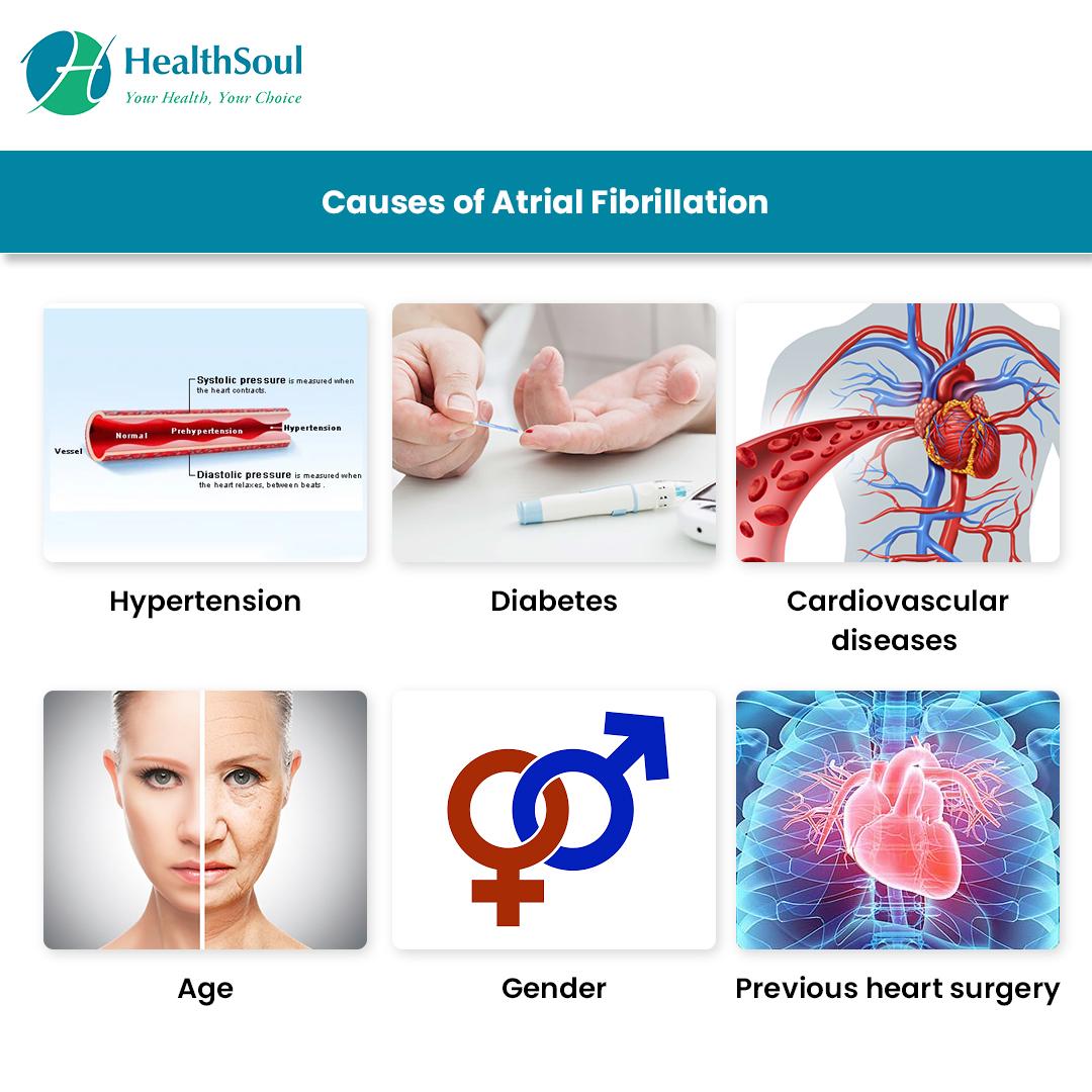 Causes of Atrial Fibrillation