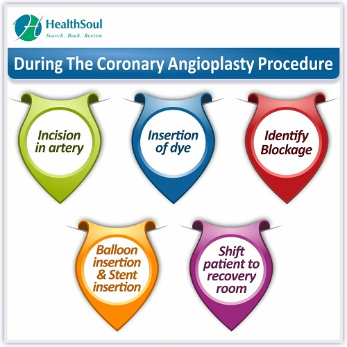 During The Coronary Angioplasty Procedure | HealthSoul