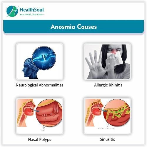Anosmia Causes