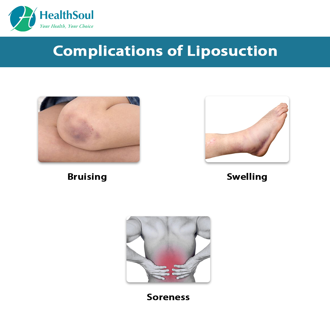 Complication of Liposuction