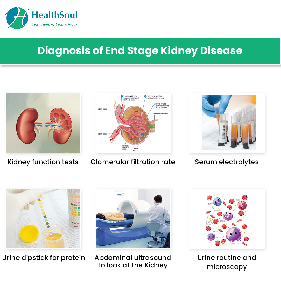 Diagnosis of End Stage Kidney Disease