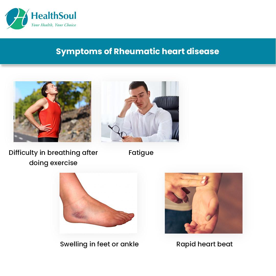 Symptoms of Rheumatic heart Diseases