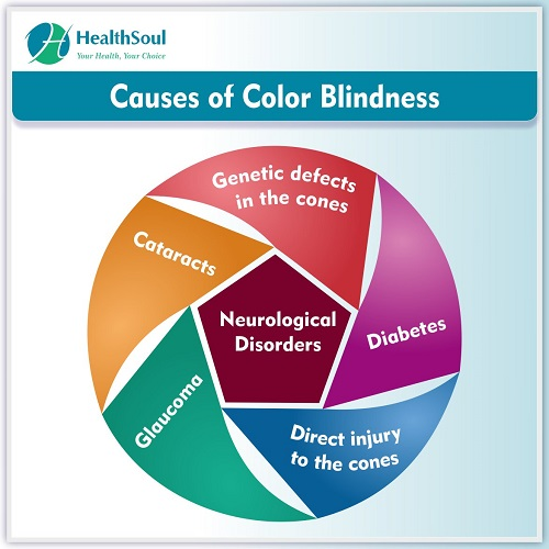 Causes of Color Blindness | HealthSoul