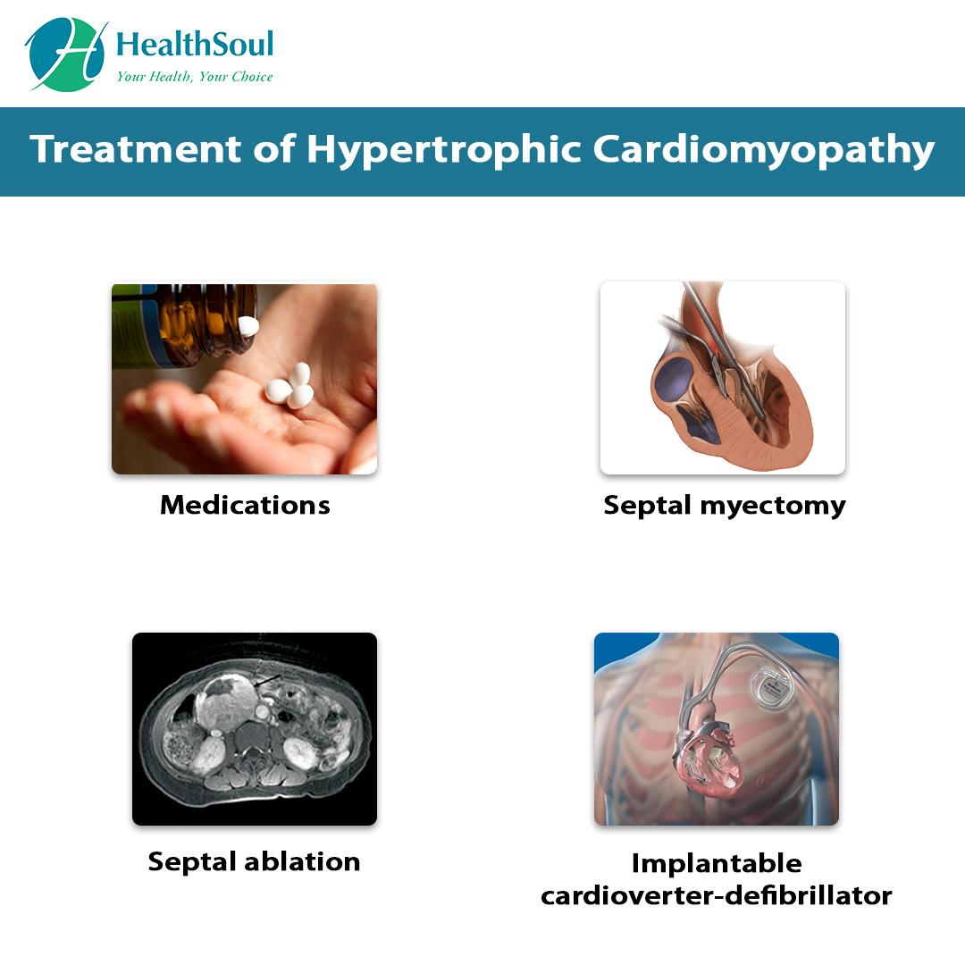 Treatment of Hypertrophic Cardiomyopathy