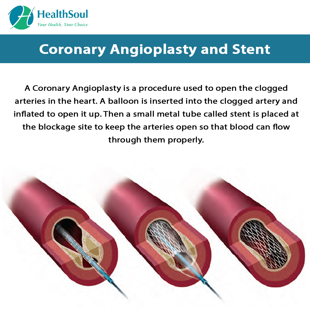 Coronary Angioplasty and Stent