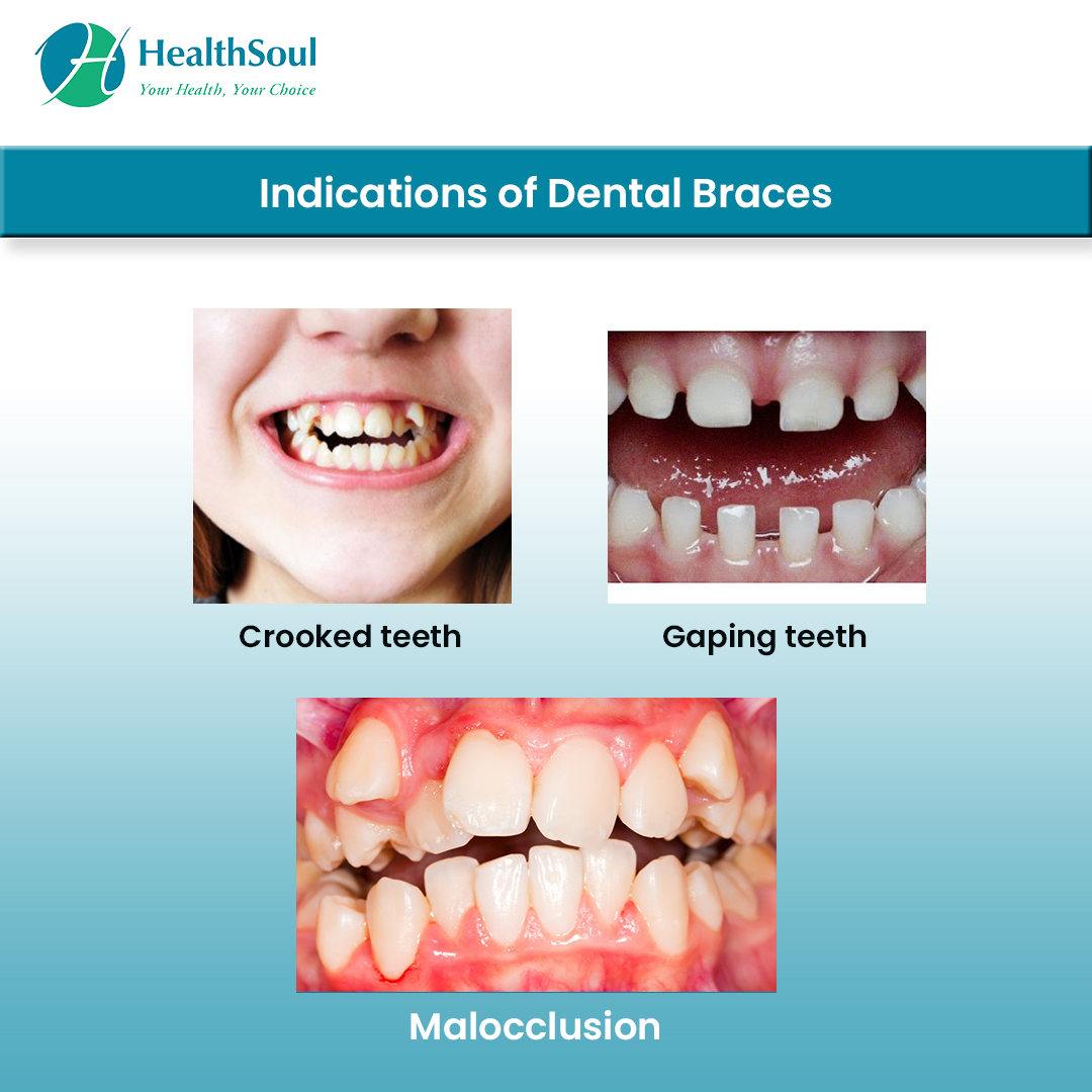 Indications of Dental braces