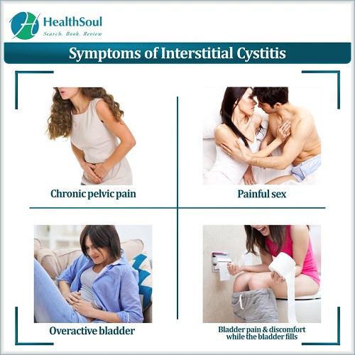 Symptoms of Interstitial Cystitis | HealthSoul