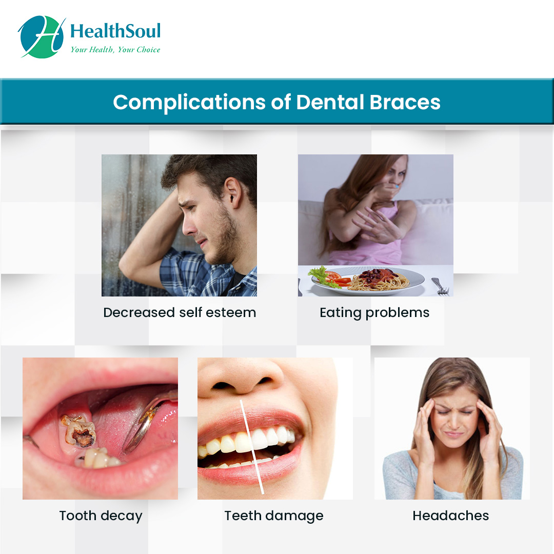 Complications of Dental braces