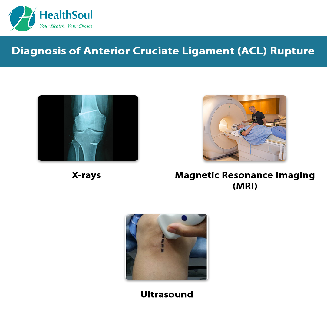 Diagnosis of Anterior Cruciate Ligament (ACL) Rupture