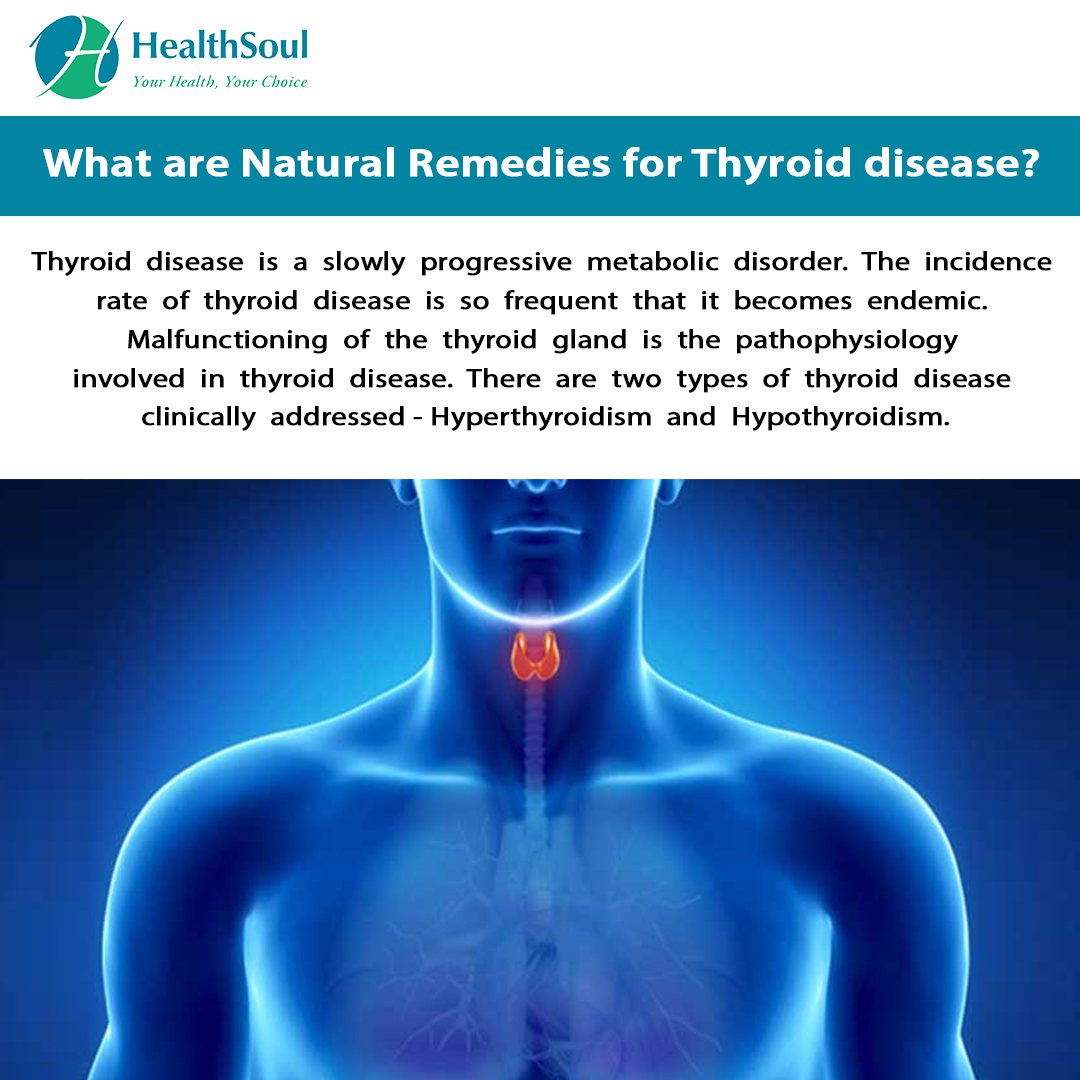 What are natural remedies for Thyroid Disease?
