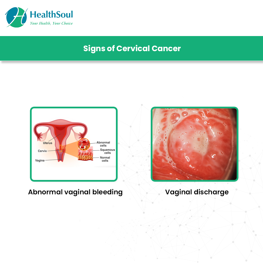 HealthSoul | Cervical Cancer: Screening and Prevention | Gynecology