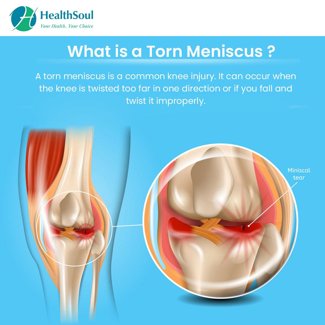 What is a Torn Meniscus?