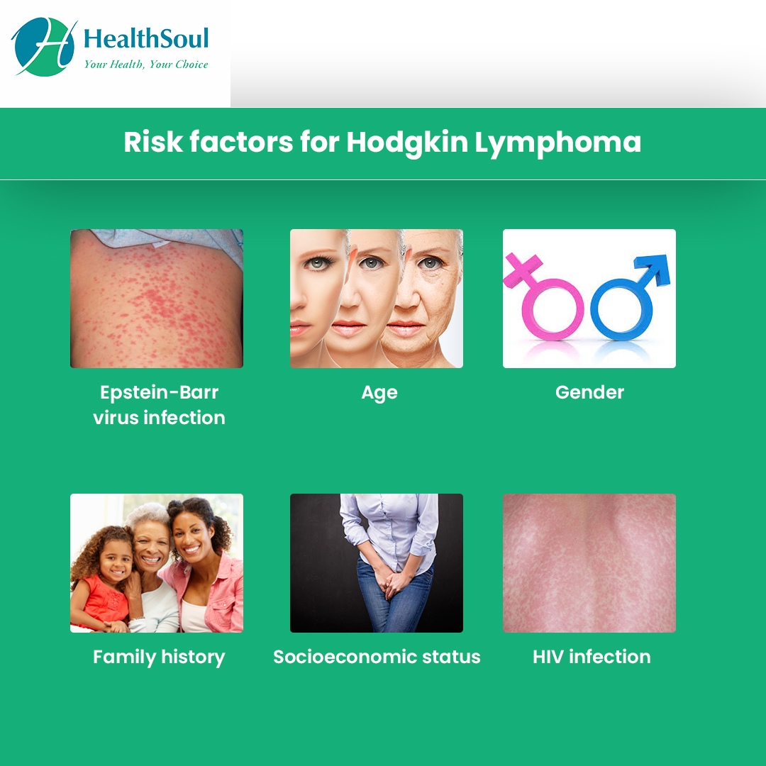 Risk factors for Hodgkin Lymphoma