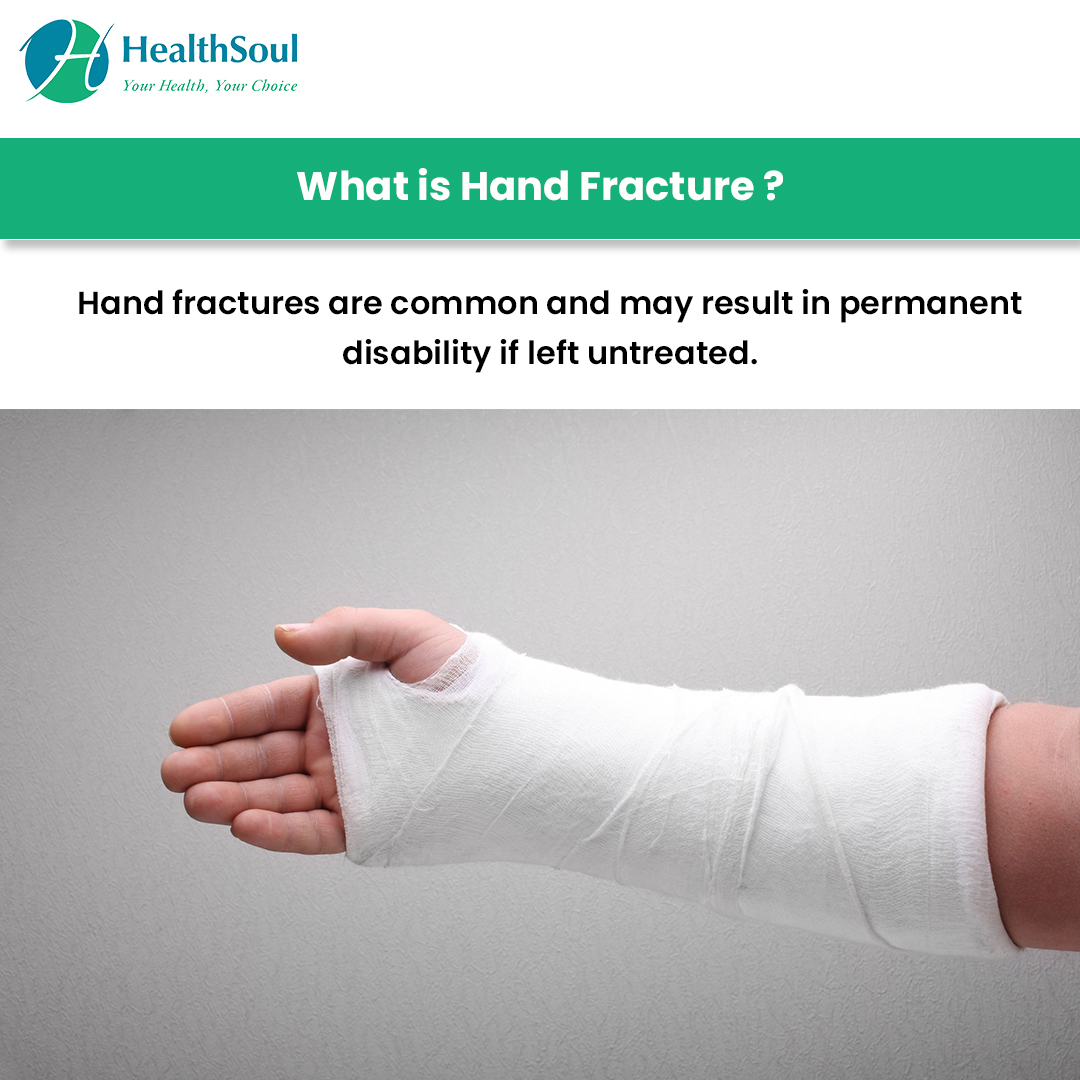 What is Hand Fracture?
