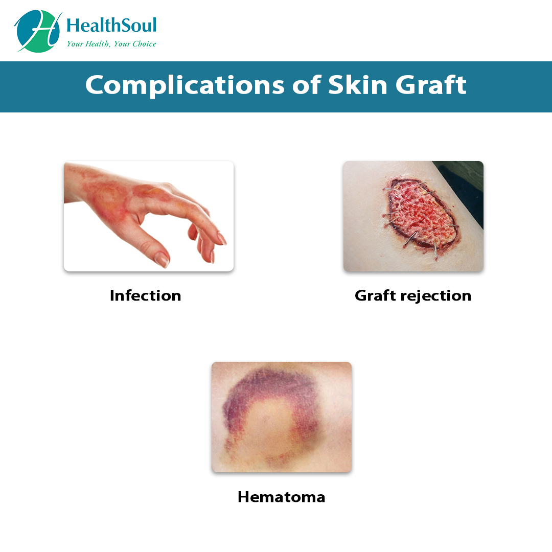 Complications of Skin Graft