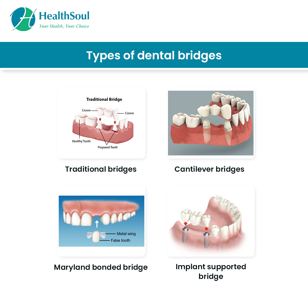 Dental Bridges: Types and Indications   Dentistry   HealthSoul