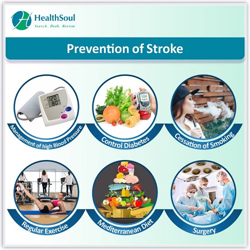 Prevention of Stroke   HealthSoul