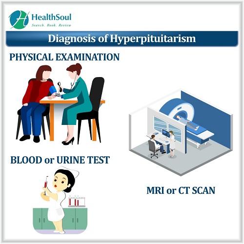 Diagnosis of Hyperpituitarism | HealthSoul