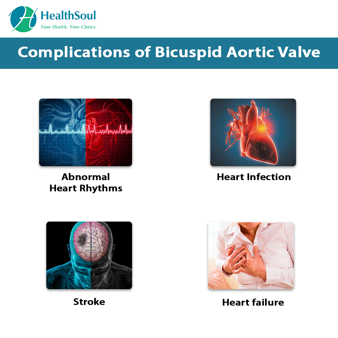 COMPLICATIONS OF BICUSPID AORTIC VALVE