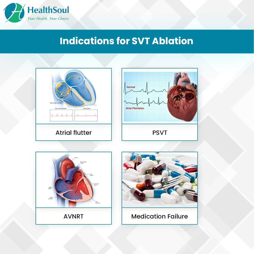 Indications for SVT Ablation