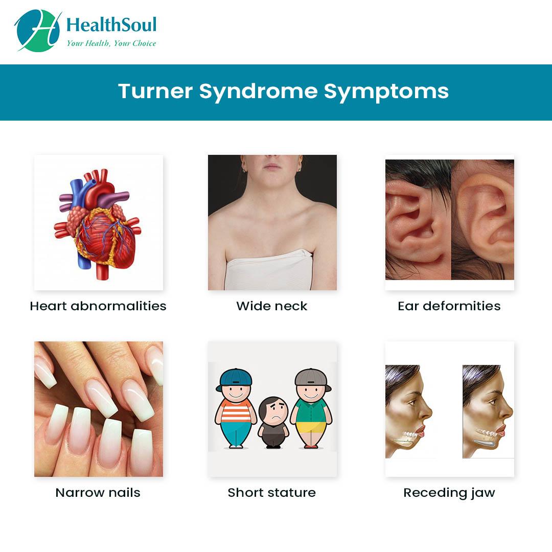 turner syndrome: lack of x chromosome