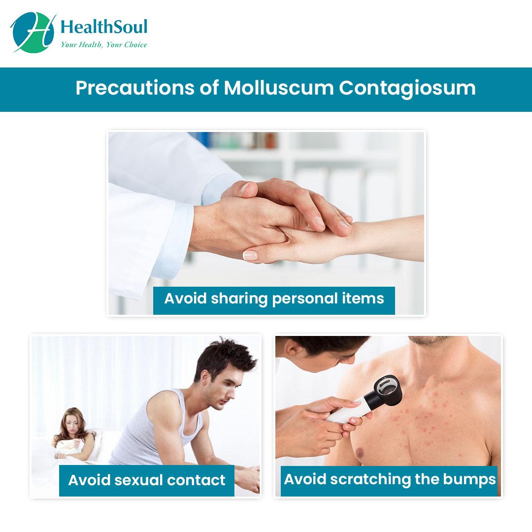 Precautions of Molluscum Contagiosum