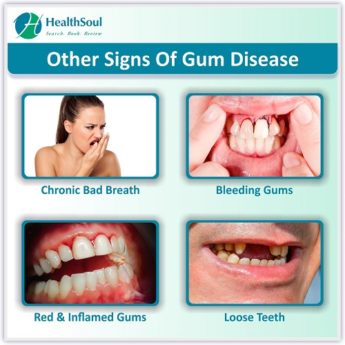 Other Signs of Gum Disease   HealthSoul