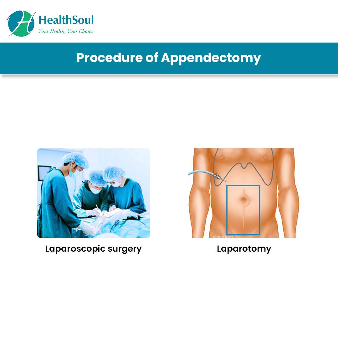 Procedure of Appendectomy