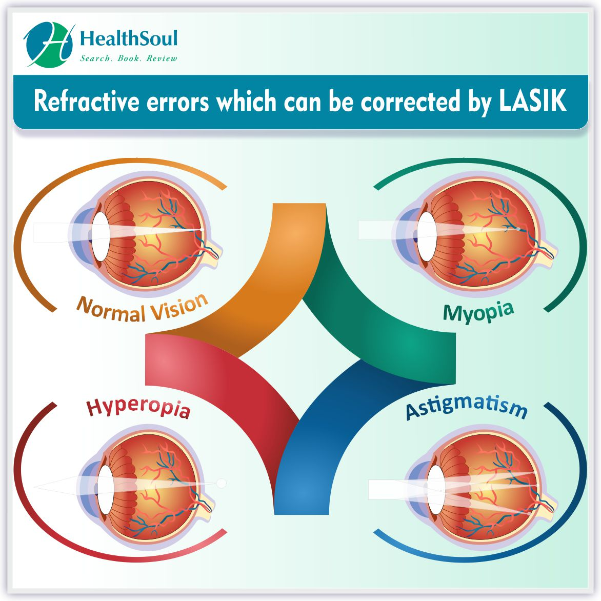 Refractive errors whiich can be corrected by LASIK | HealthSoul