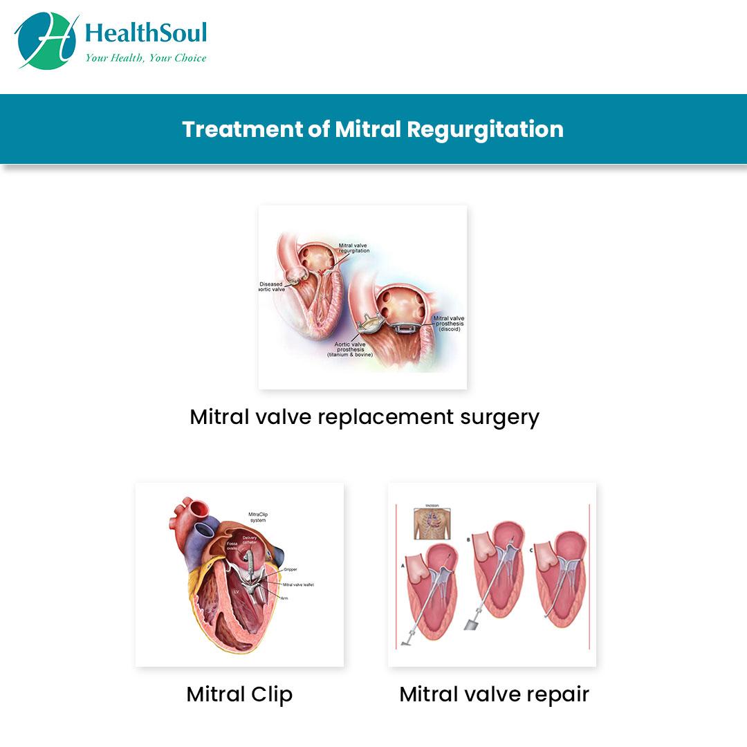 Treatment of Mitral Regurgitation