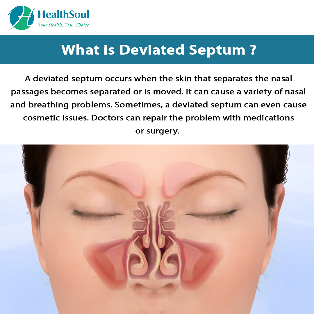 What is Deviated Septum?