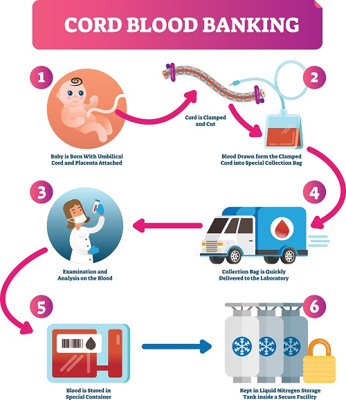 Cord Blood Banking | HealthSoul