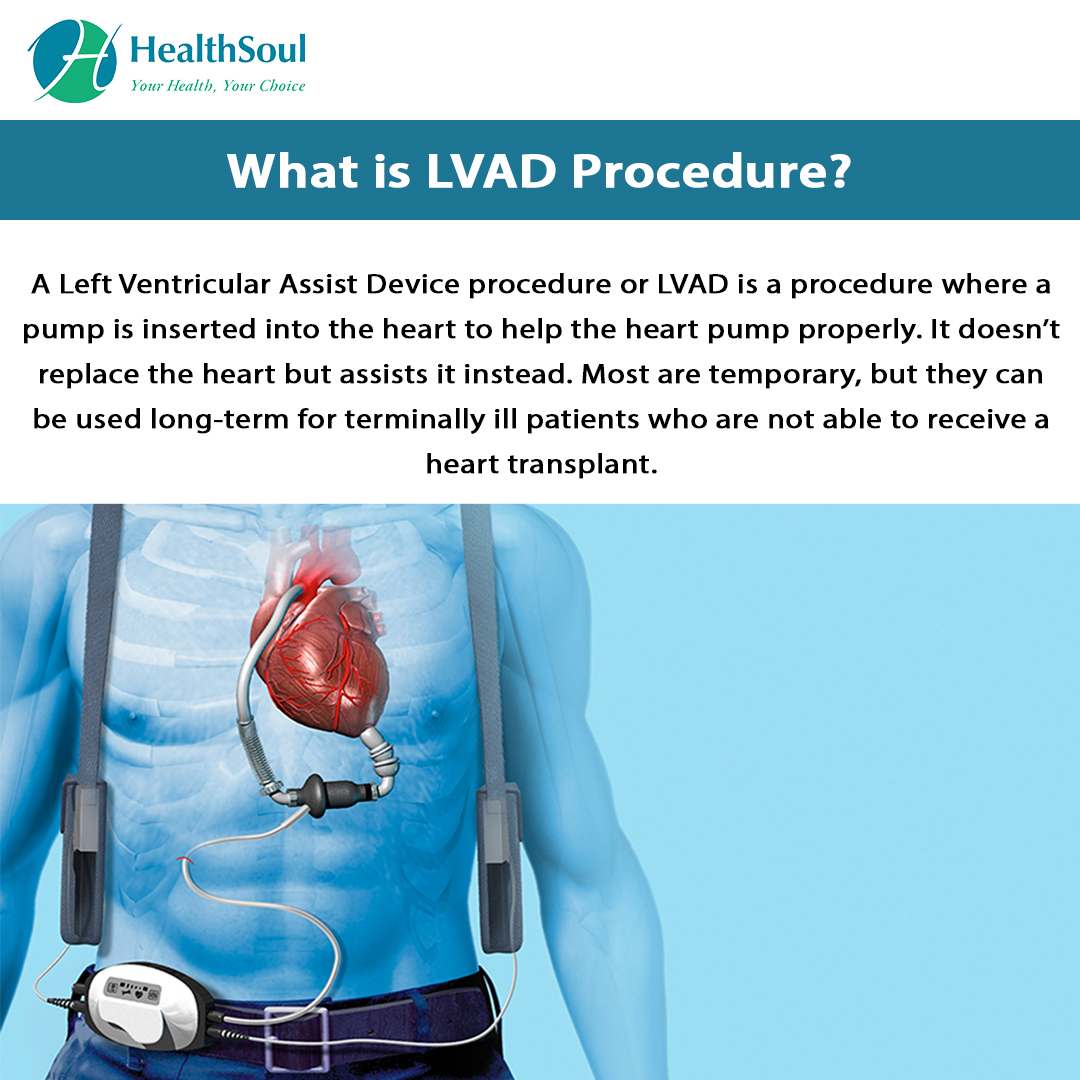 What is LVAD Procedure?