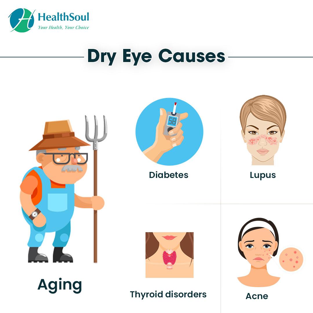 Dry Eye Causes