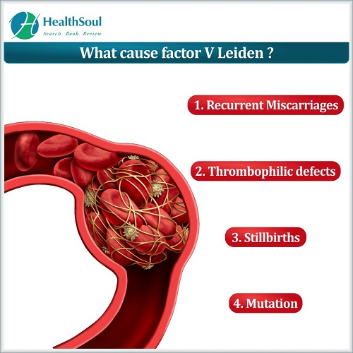 What cause factor V Leiden? HealthSoul