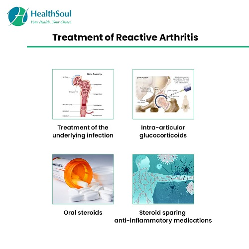 Treatment of Reactive Arthritis | HealthSoul