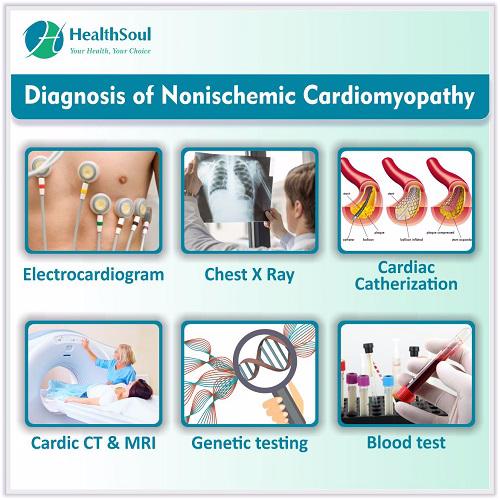 Diagnosis of Nonischemic Cardiomyopathy | HealthSoul