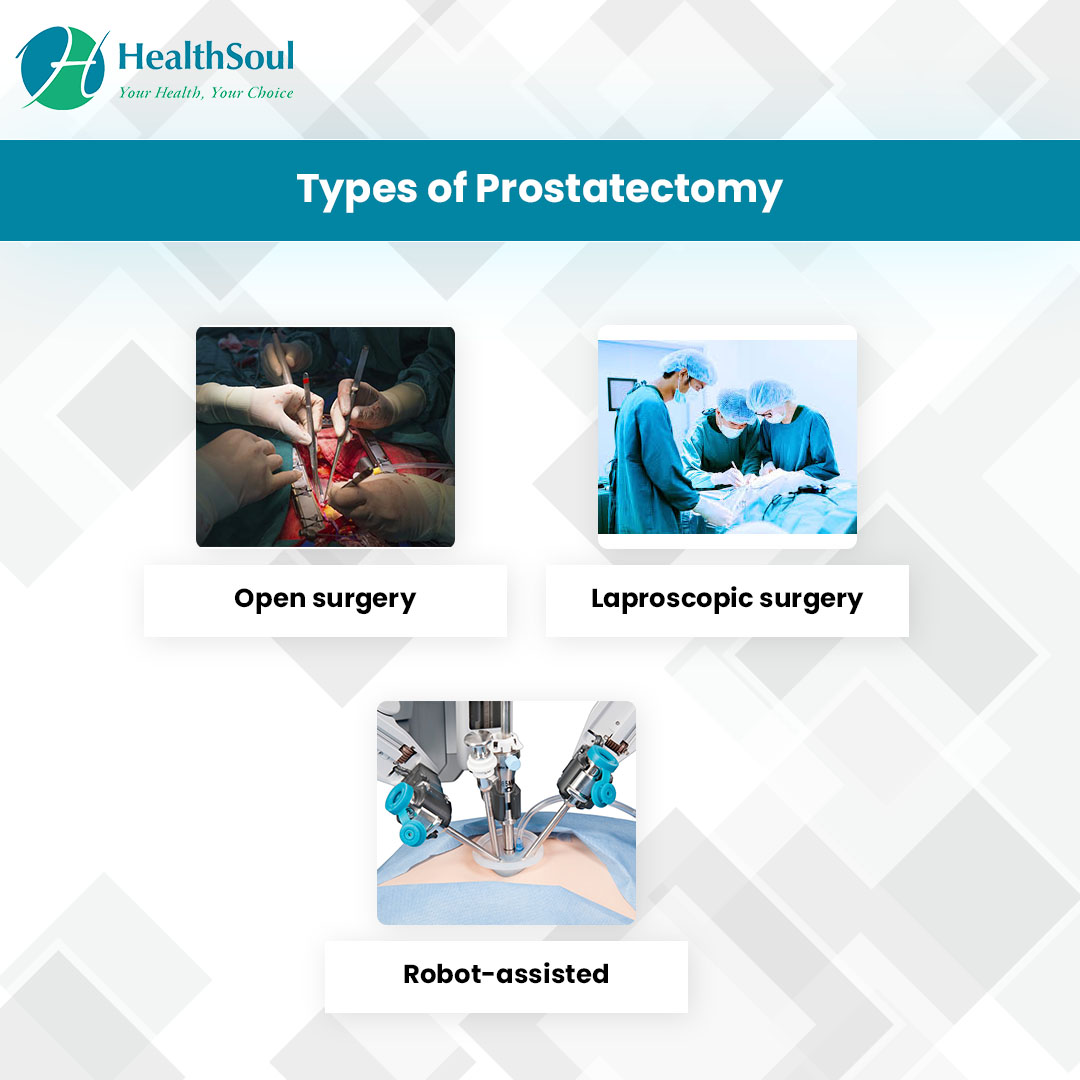 Types of Prostatectomy