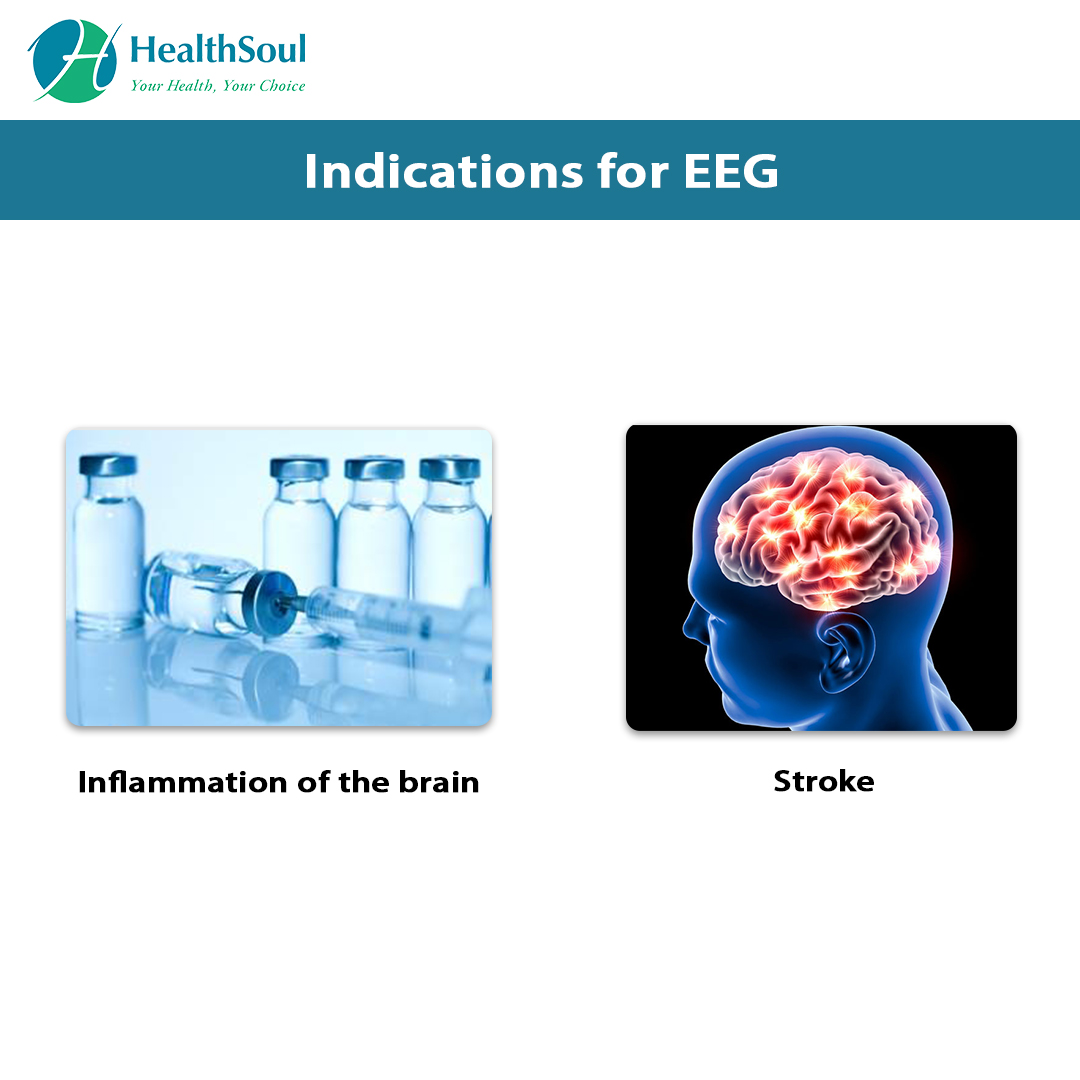 Indications of EGG